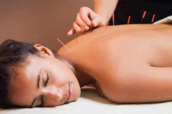 Adding Acupuncture to Your Detox Lifestyle for Better Health