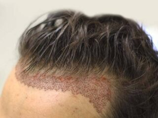 Natural-hair-transplant