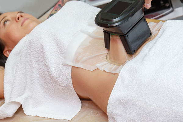 Coolsculpting Side Effects And Risks
